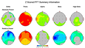 Topographical Map of Brain Activity in Theta Range