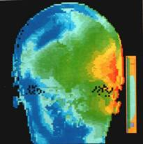Thermal image of head and mobile phone